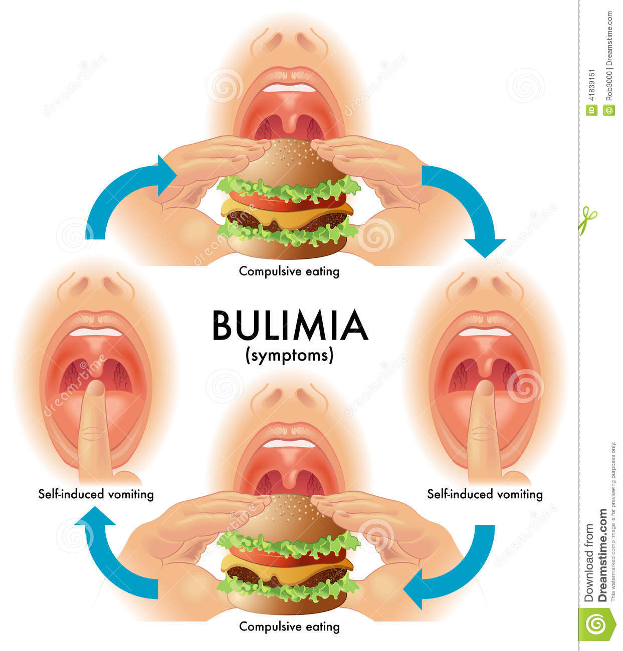 Bulimia Nervosa: What to Look for and How to Get Help – CounselingRx