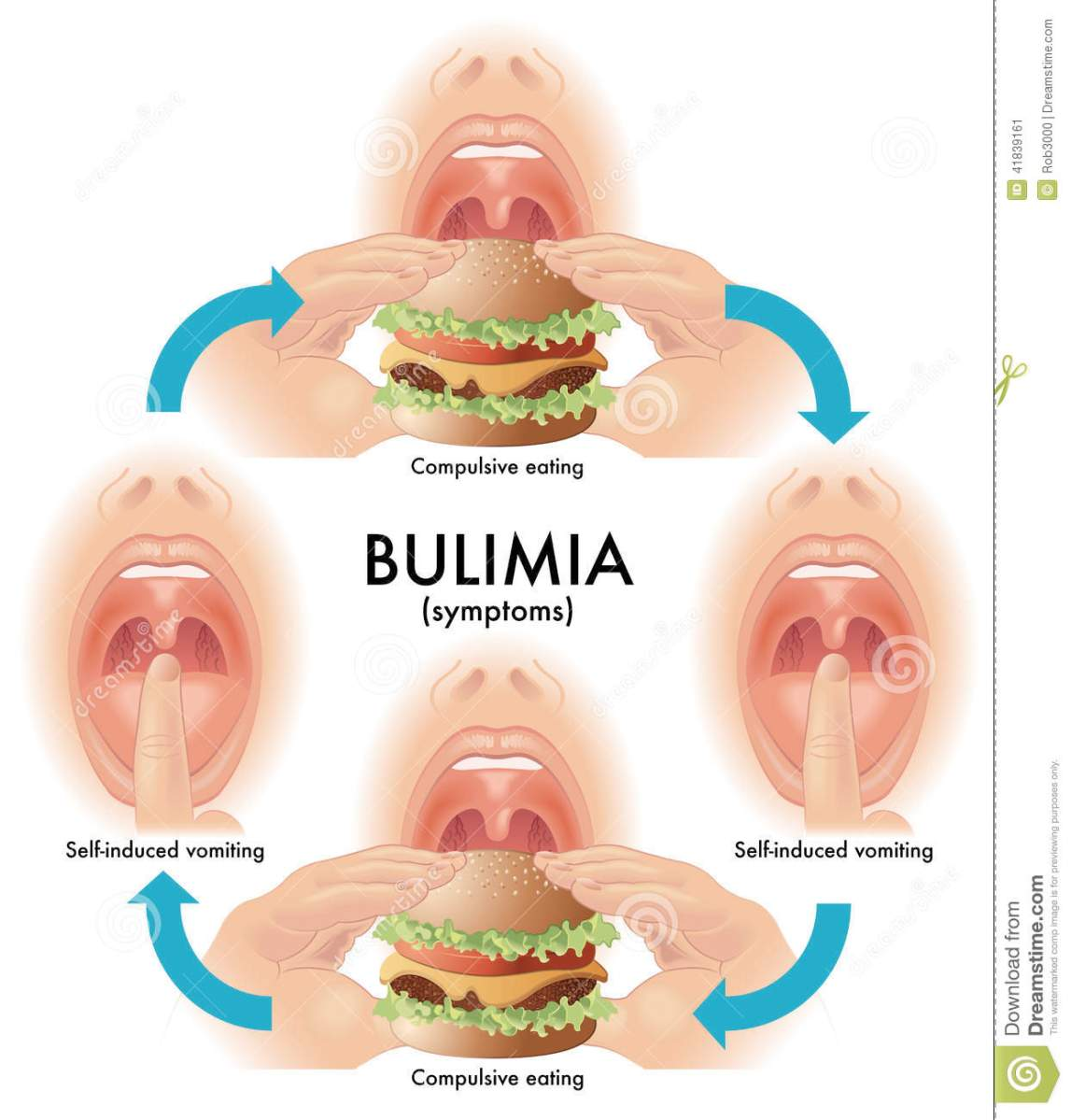 bulimia nervosa Definition bulimia nervosa is an intense preoccupation with body weight and shape, with regular episodes of uncontrolled overeating of large amounts of food (binge eating) associated with use of extreme methods to counteract the feared effects of overeating.