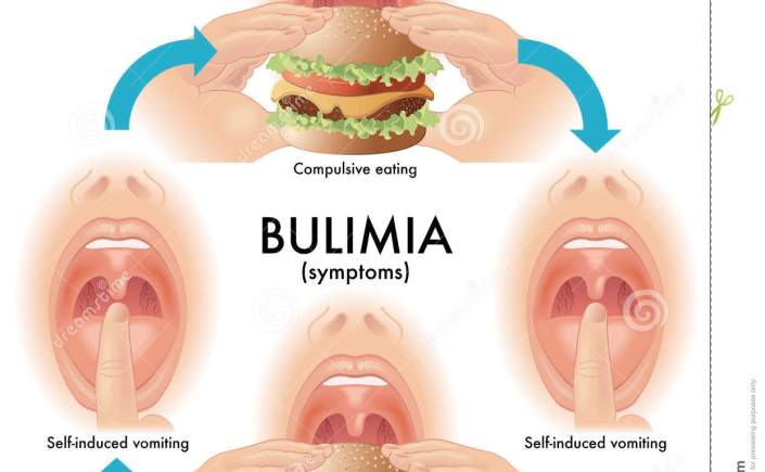 bulimia nervosa what to look for and how to get help counselingrx